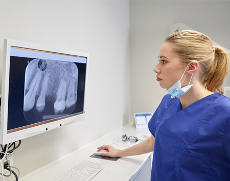 Dental Hygienist Looking at X-Rays for a Dental Bridge in Raleigh, NC