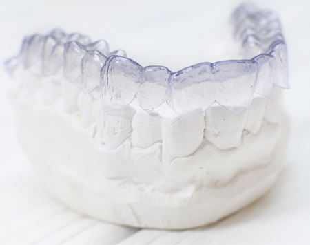 Invisalign Braces Sitting on Molds in Raleigh, NC